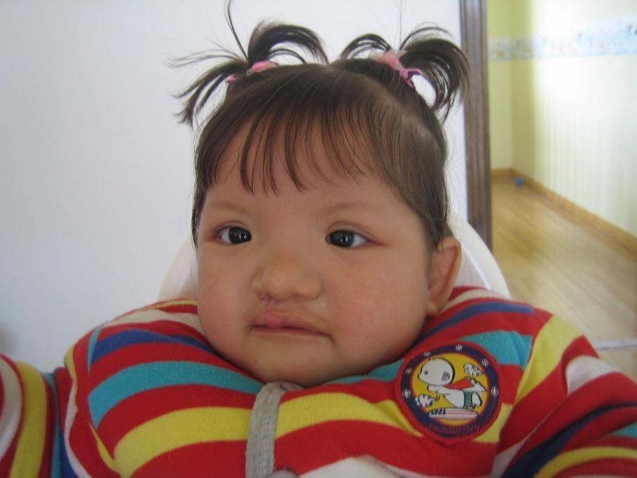 La pequeña Plum de 12 meses, progresa muchísimo en la Casa de Curación True Children de Fujian. Plum lleva luchando con problemas pulmonares muchos meses y al fin, los ha superado. No solo le han operado su fisura labial, sino que está avanzando a una velocidad impresionante. Ya se puede sentar sola y coger juguetes a la vez! ¿No os encantan sus coletas?