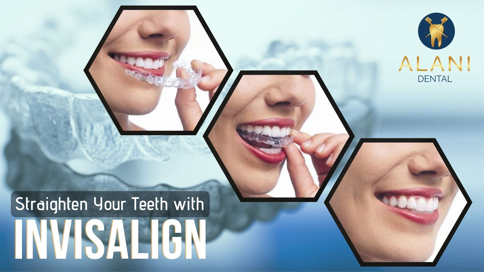 Invisalign jacksonville with images invisalign