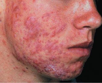 Eksim atau Dermatitis adalah istilah kedokteran untuk kelainankulityang mana kulit tampak meradang dan iritasi. Peradangan ini bisa terjadi dimana saja namun yang paling sering terkena adalah taangan dan kaki