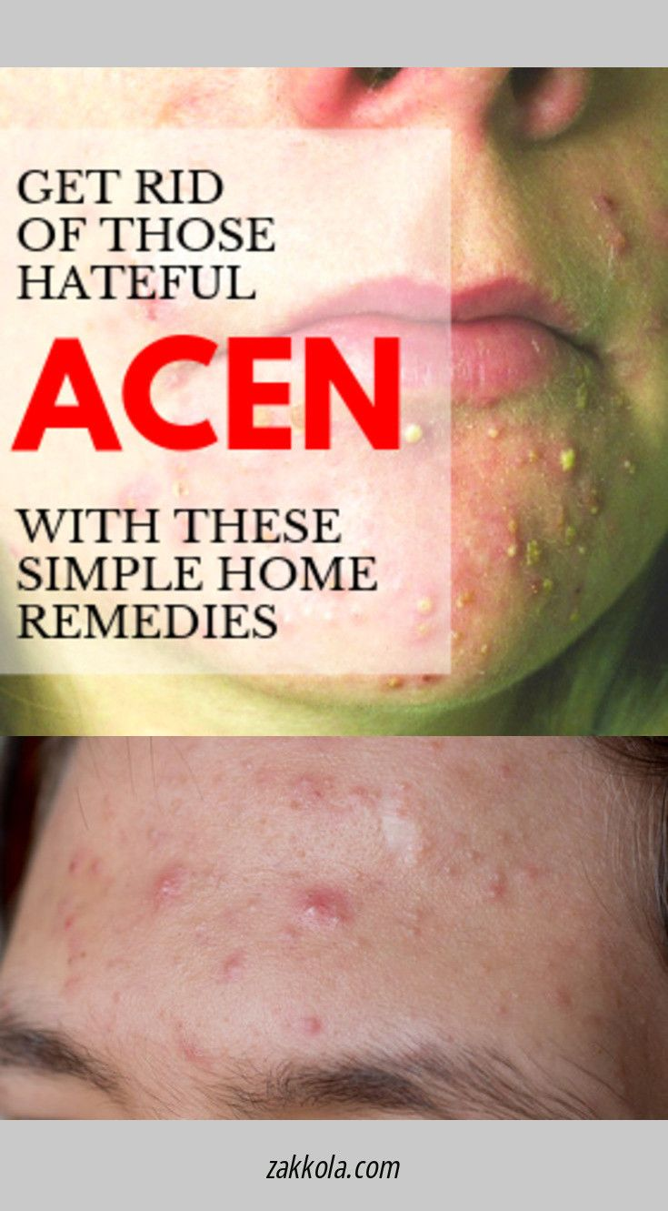 Read more about acne. Just click on the link for more info