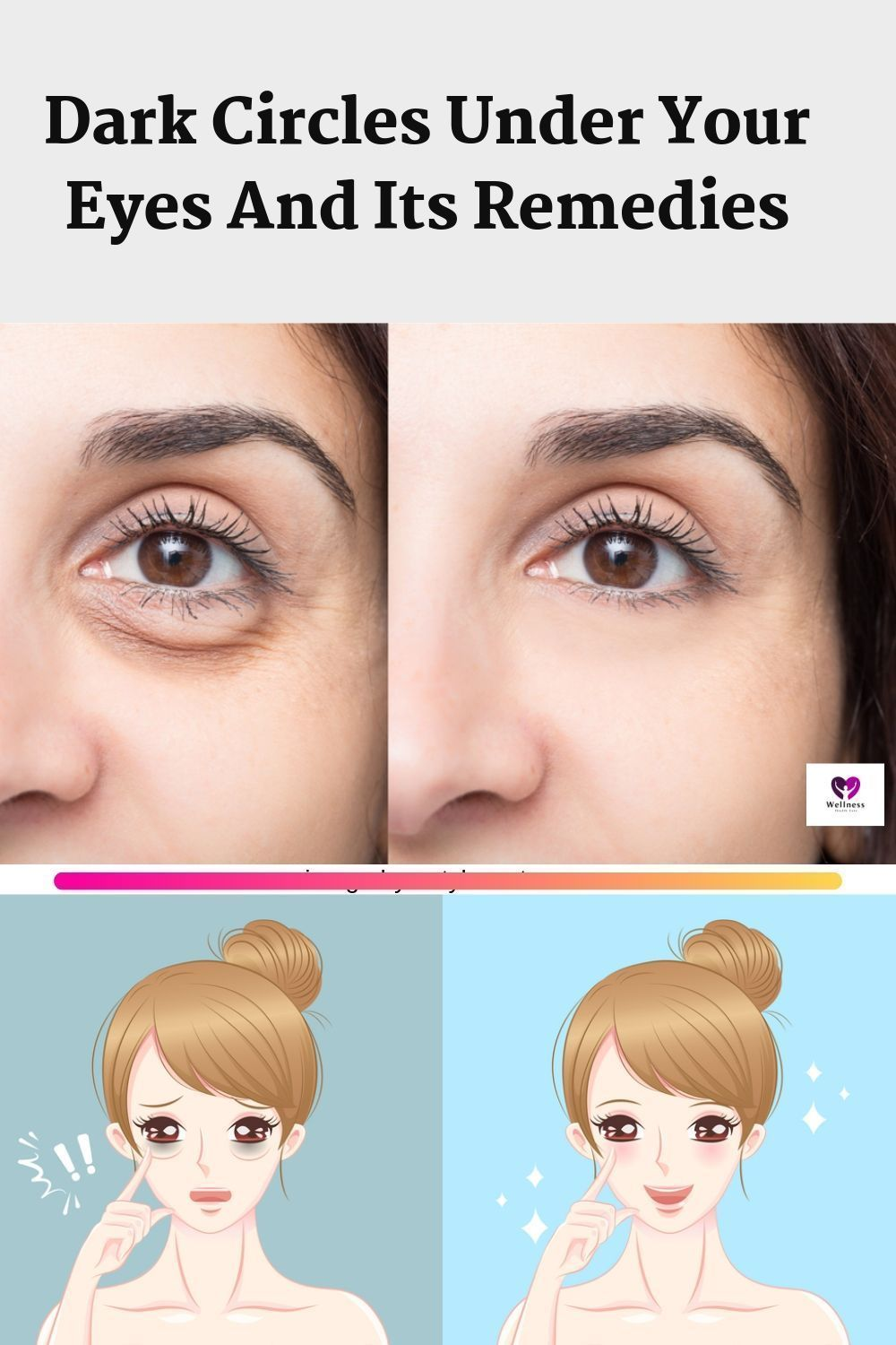 Dark Circles Under Your Eyes And Its Remedies Are you facing dark circles under your eyes? Is it getting difficult for you to look your eyes in mirror daily? Don't be worried today I am going to tell you the remedies which you can prepare easily at your home with your kitchen products. #DarkCirclesCream #darkcircle