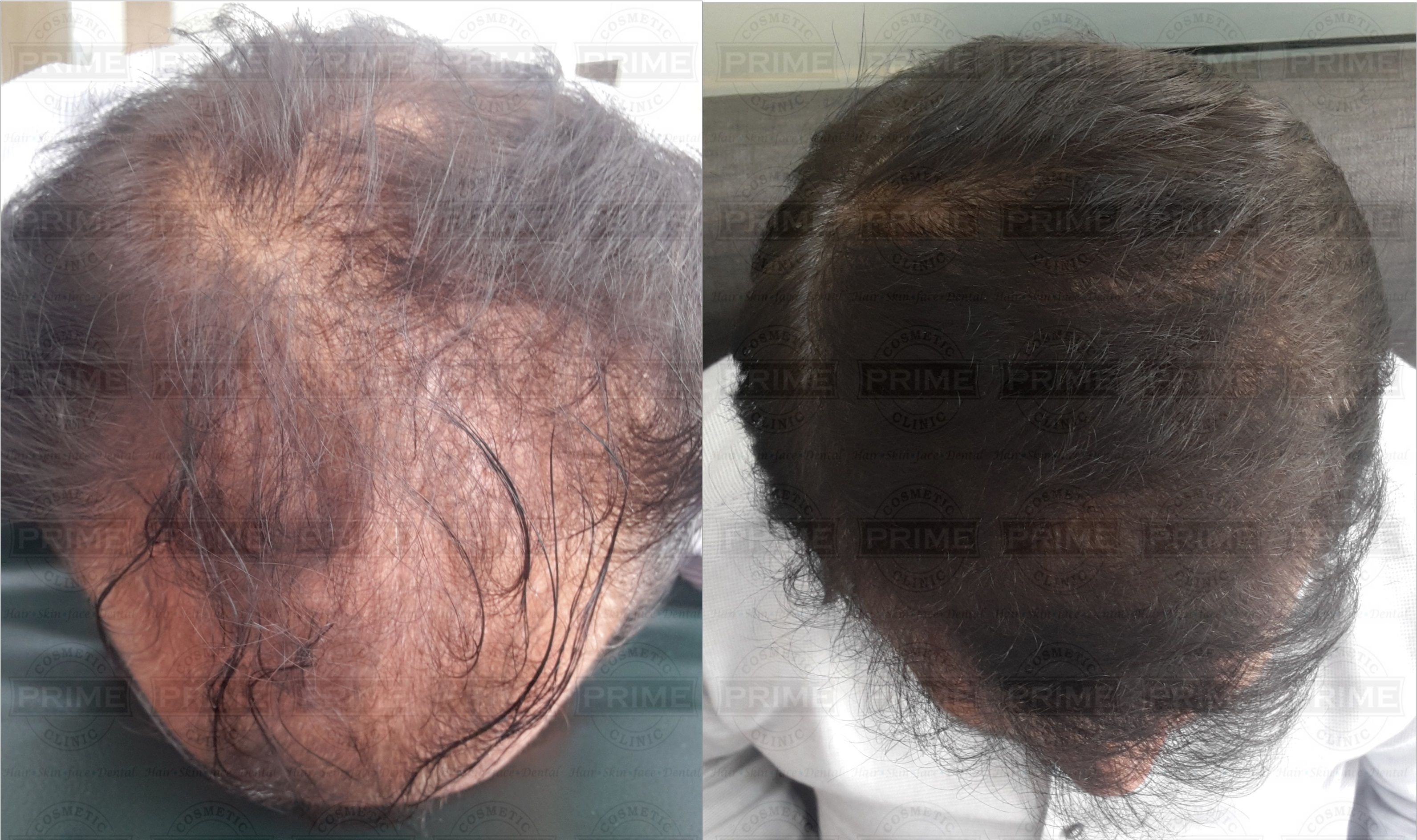 hair Transplant Cost in Mumbai India is less compared to other