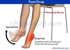 Foot Drop: Symptoms, Treatment, Exercises, Recovery | exercises ...