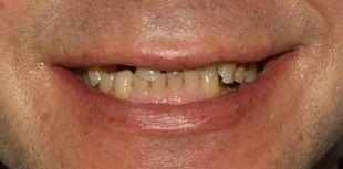 Before Full Reconstruction - treatment included dental implants, dental crowns, veneers, Zoom whitening   Before Rehabilitacion Oral - tratamiento de multiples fases incluyo implantes dentales, coronas y carillas de porcelana, y blanqueamiento Zoom