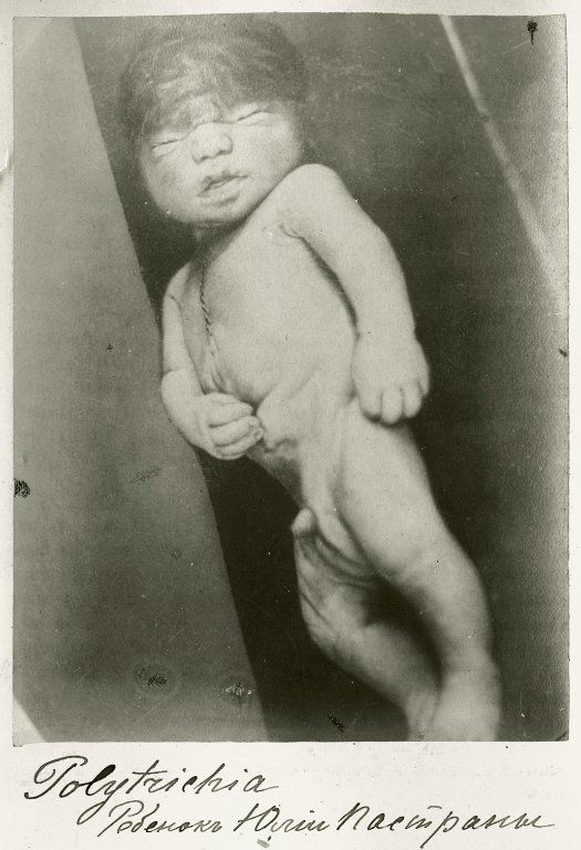 Photograph Of Julia Pastranas Newborn Son Who Was Delivered By