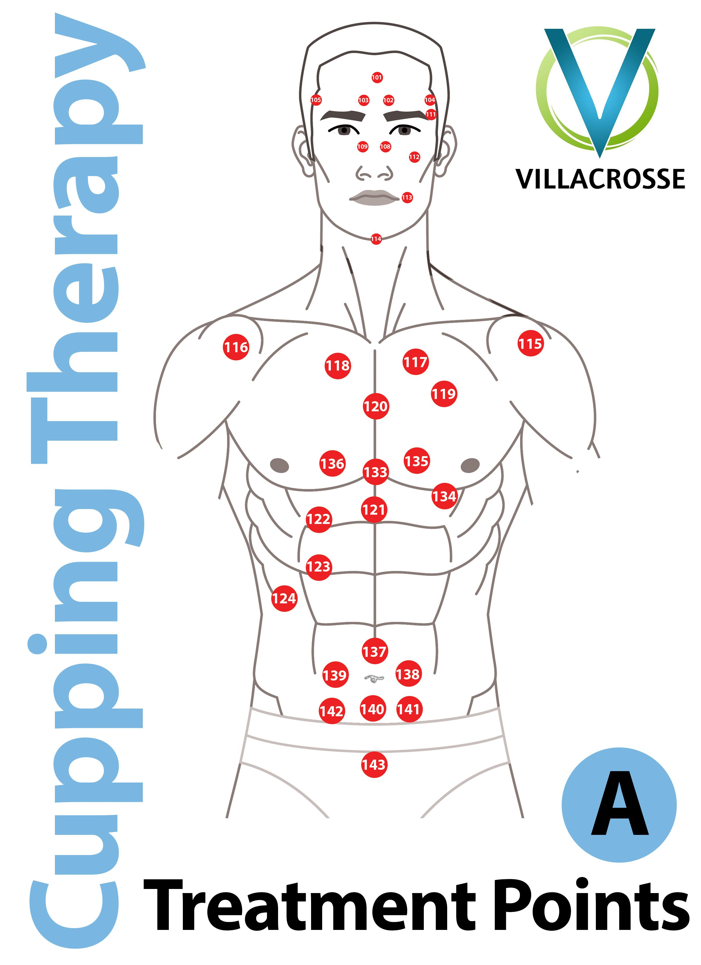 Cupping Points Cuppint Set Cupping Massage Cupping
