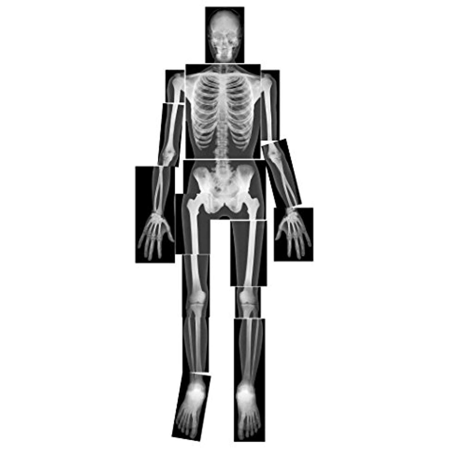 Roylco True To Life Human X Rays Read More At The Image