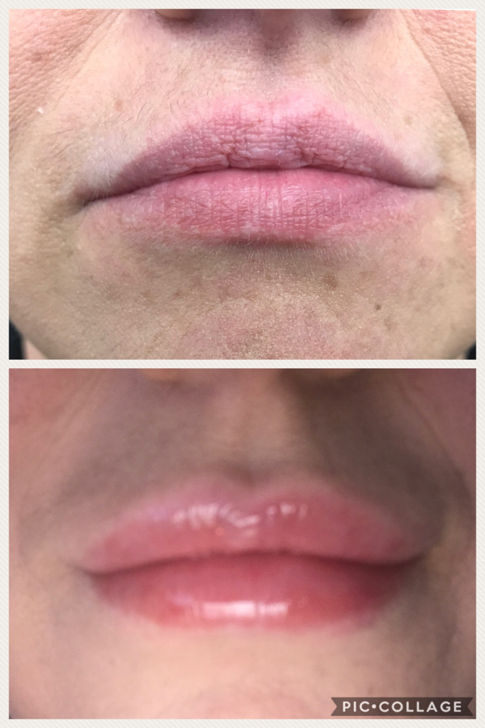 Before and After 0 5ml of Juvederm Volift | Injections in 2019 | Lip