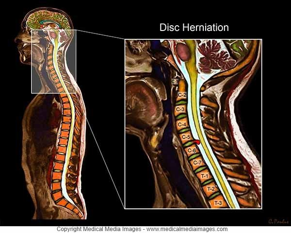 Color MRI of a Cervical Disc Herniation. Shown as a magnified Image ...