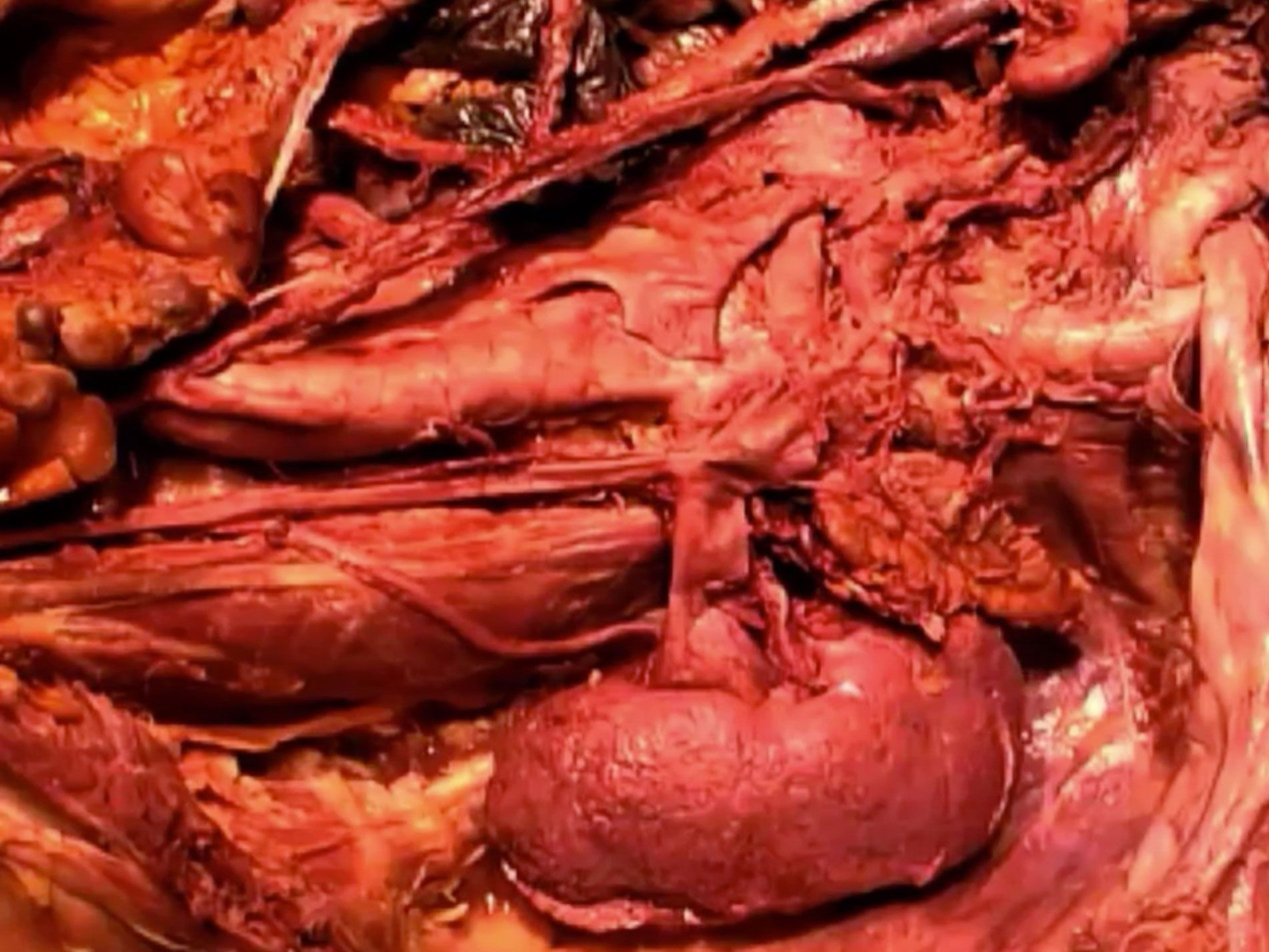 Picture From Dissection 07 Posterior Abdominal Wall Video Anatomy
