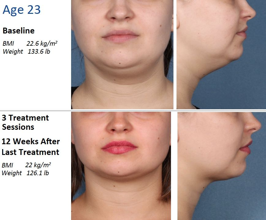 kybella before and after pics - | Kybella Before and After