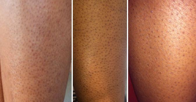 Can You Get Acne On Your Legs This Is How You Can Get Rid Of Dark Pores On Legs Naturally Exfoliante De Piernas Como Depilar Piernas Vello En Las Piernas