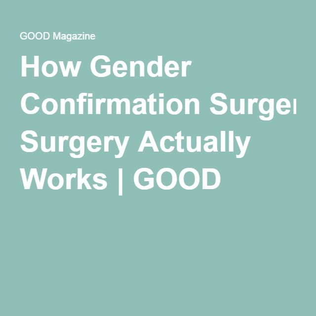 This Is How A Male-To-Female Sexual Reassignment Surgery -3014