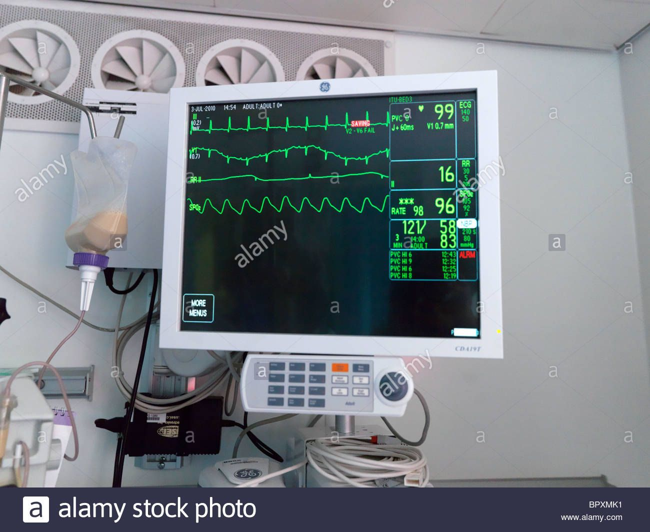 London England Private Intensive Care Unit Hospital Monitor