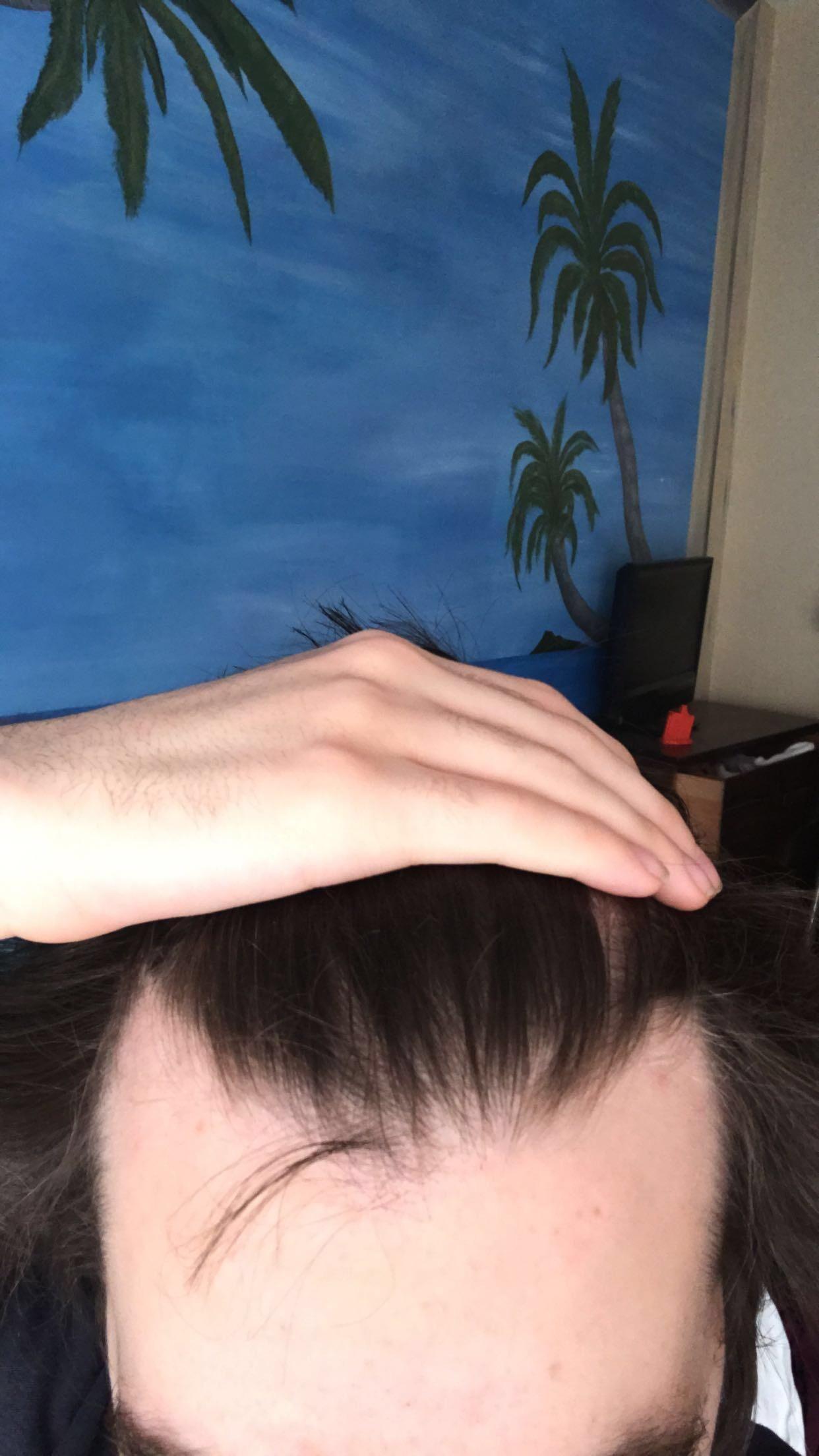 Mature Hairline Or Receding 18? Http://ift.tt/2BPJGJ6