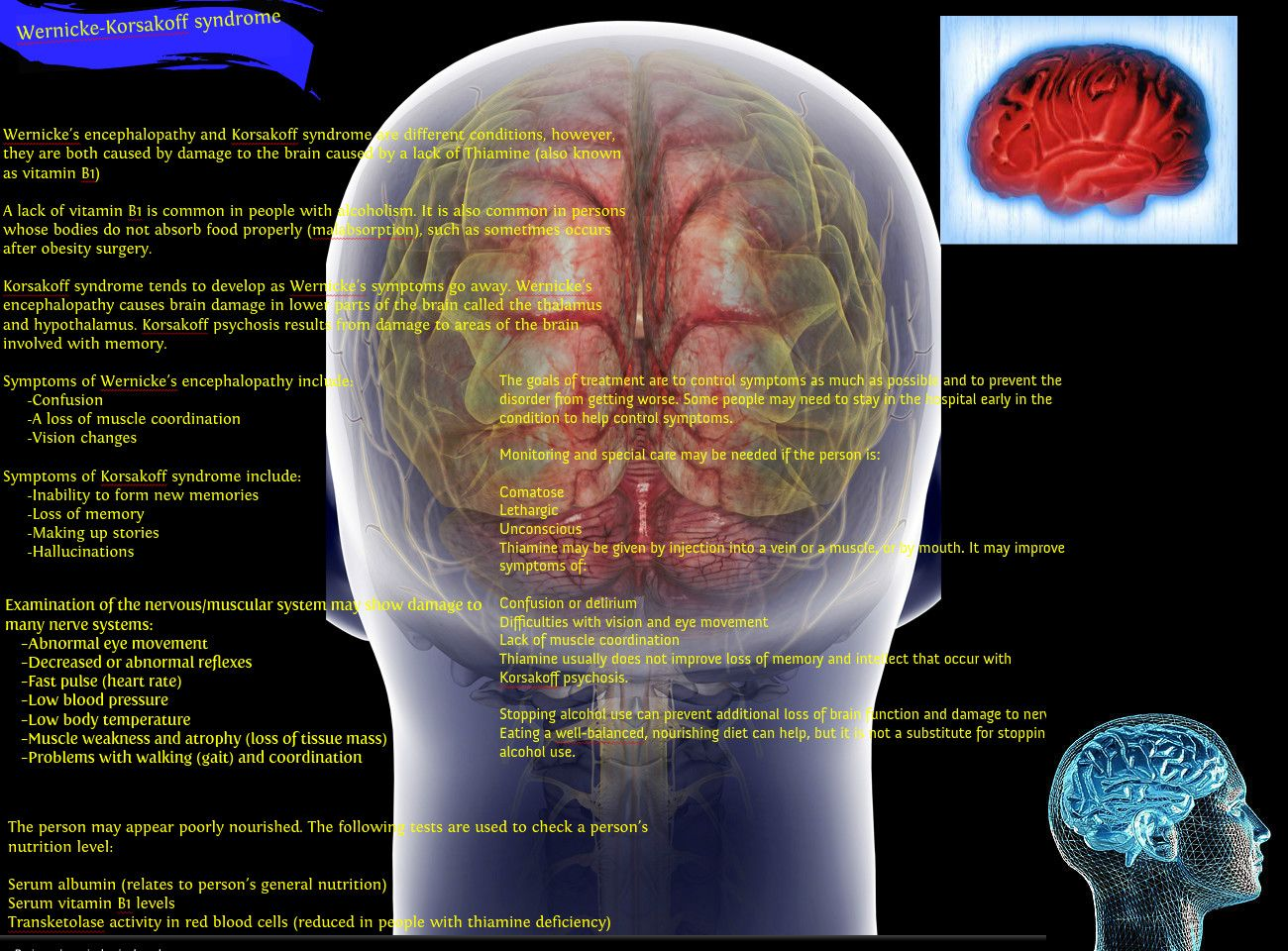 wernickes encephalopathy essay The purpose of this pictorial essay is to present the computed tomography (ct) and magnetic resonance imaging (mri) findings of wernicke's encephalopathy, a rare, severe, acute neurological syndrome due to thiamine (vitamin b1) deficiency.