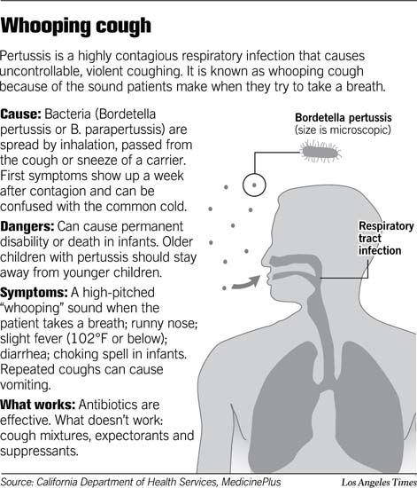 bordetella pertussis signs and symptoms - Google Search ...