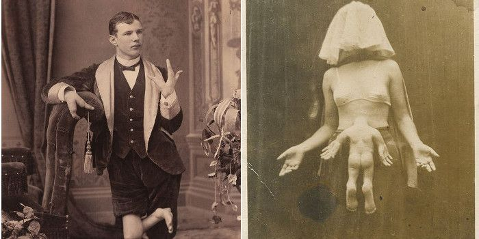 20 Unforgettable Vintage Photos of Real Circus Freaks & Sideshow Acts
