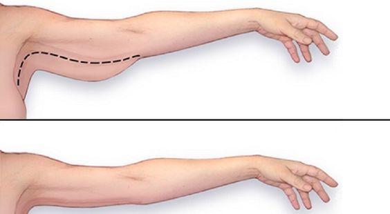 Comment perdre le gras de bras! | Maigrir des bras, Gras