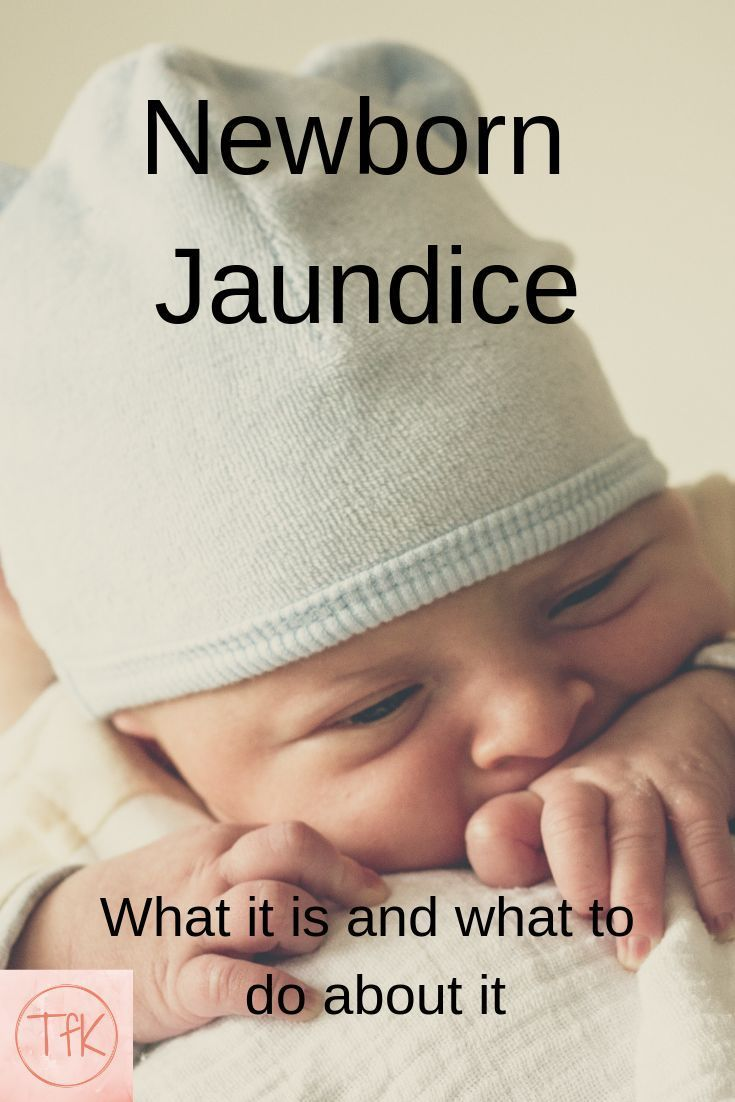 Newborn jaundice causes treatments newborn care