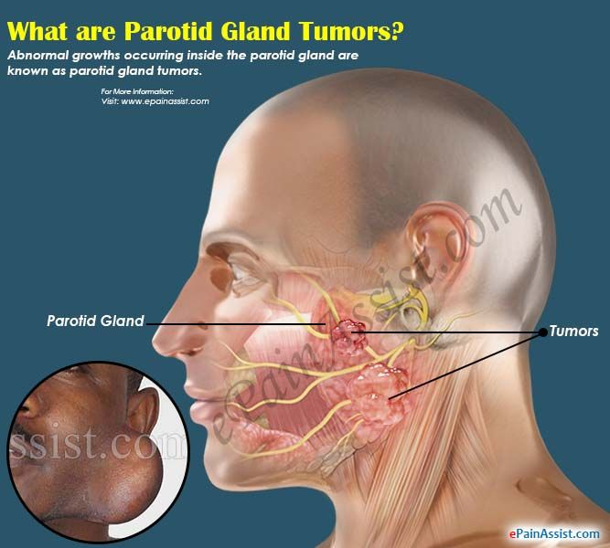 What Are Parotid Gland Tumors