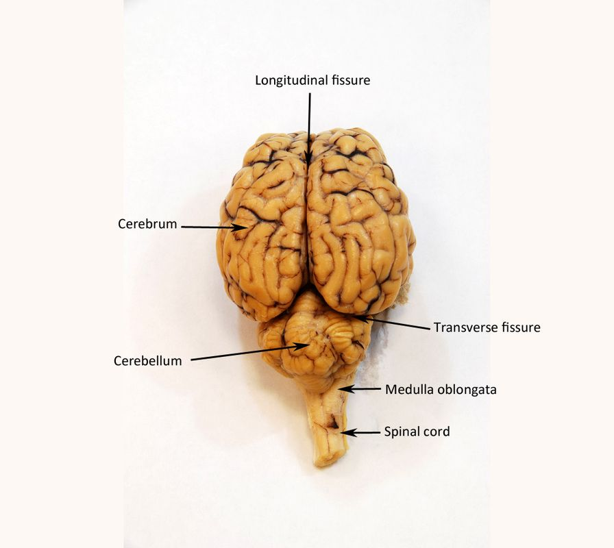 Image Result For Sheep Brain Labeled Anatomical References