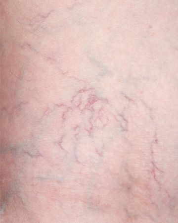 4 Ways to Keep Spider Veins Away!