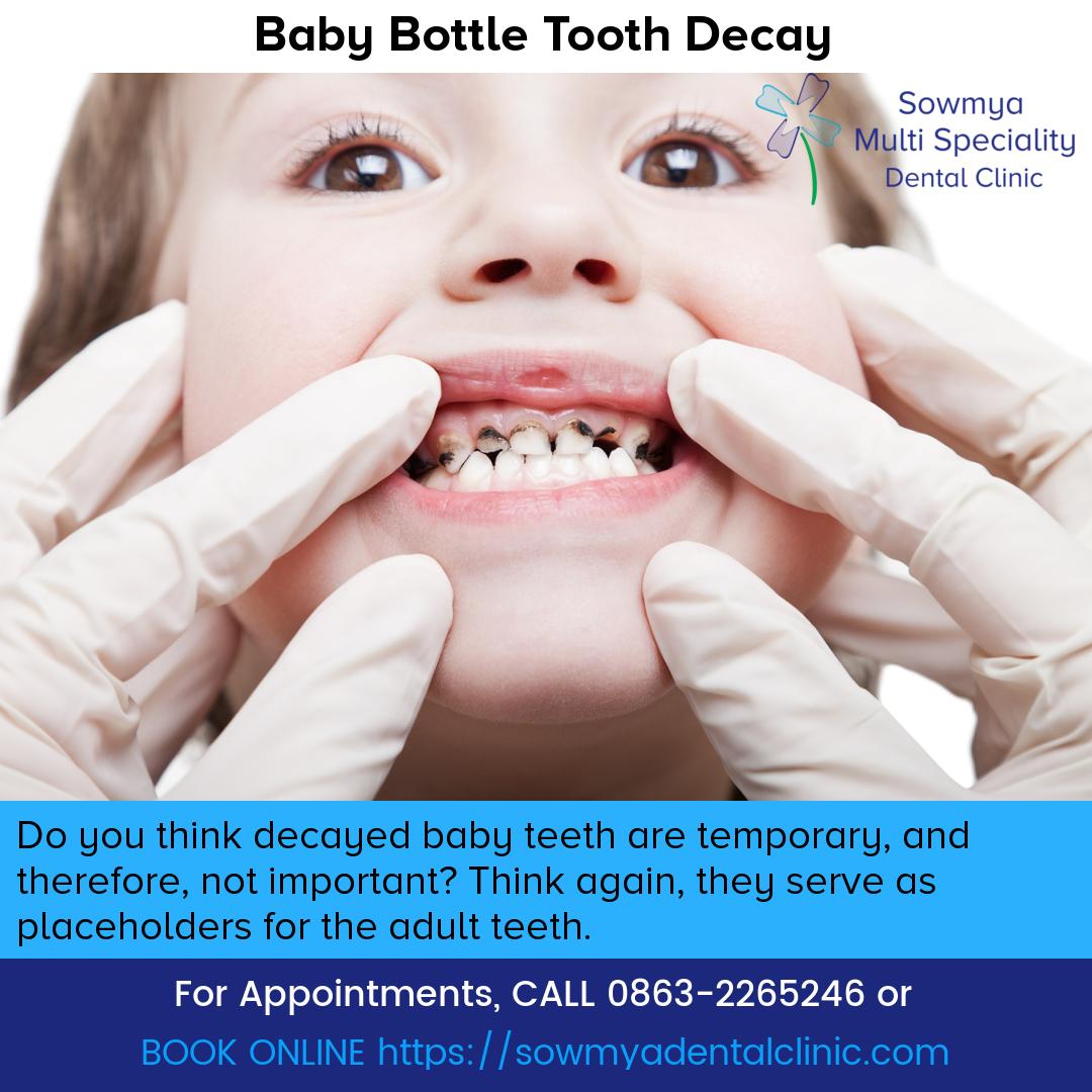 White Tooth Decay Repair teethwhiteningbyamanda