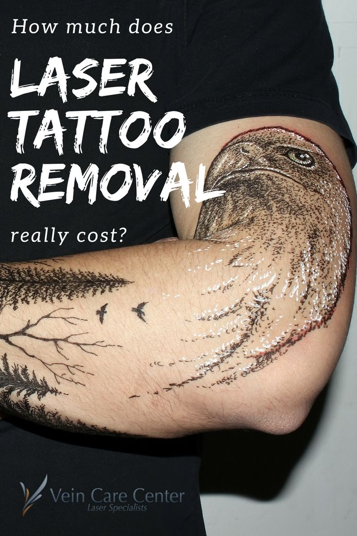 How much does laser tattoo removal really cost tattoo
