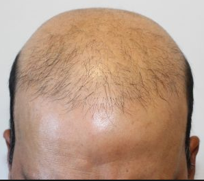 عملية إصلاح أخطاء الشعر المزروع