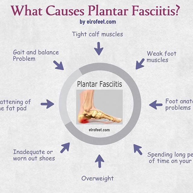 Exercise Bands Plantar Fasciitis: A Spot On Depiction Of The Causes For Plantar Fasciitis