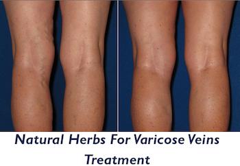varicose vein therapy
