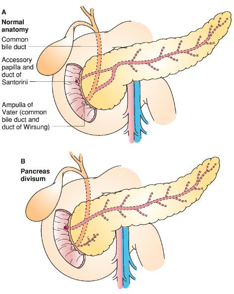 pancreas divisum image - Google Search | Julie\'s Board | Pinterest