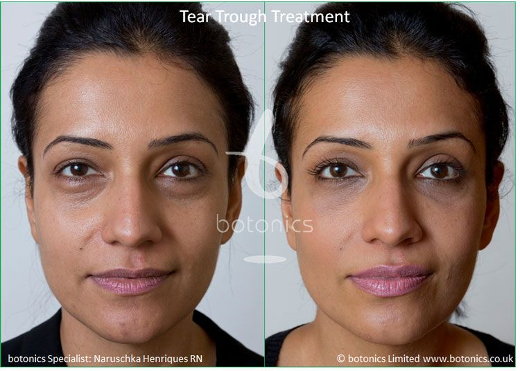 Tear Trough Beforeandafter Eye Filler Tear Trough