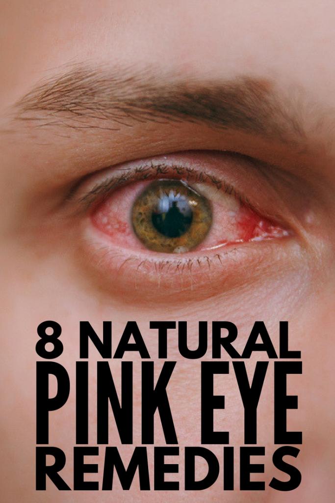 n adults Pinkeye