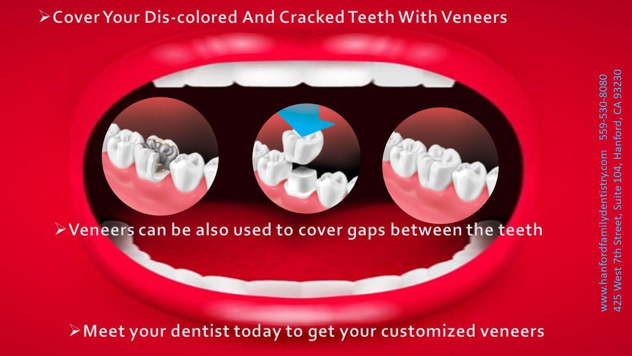 California Dentist Offer Residents Dental Veneers Dental Veneers