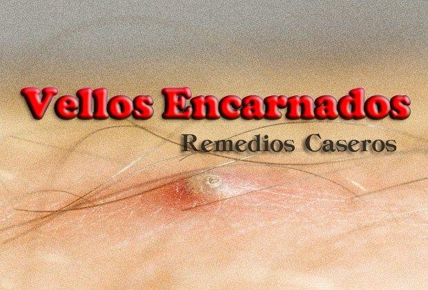 Vellos Encarnados 15 Sencillos Remedios Caseros Y Naturales Vellos Encarnados Remedios Para Pelos Encarnados Pelos Encarnados