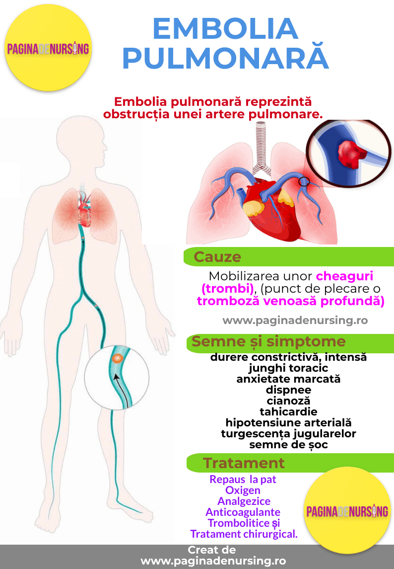 varicoză de artere pulmonare recenzii tratament varicoza la domiciliu