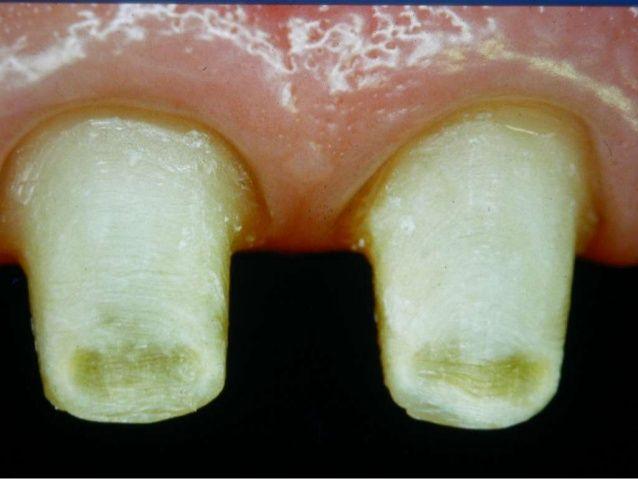 Preparation on Full Aesthetic Crown by Dental Evo via
