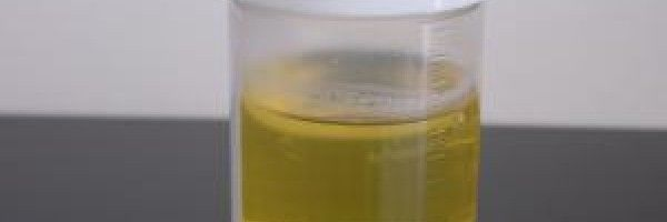 Protein in urine sperm