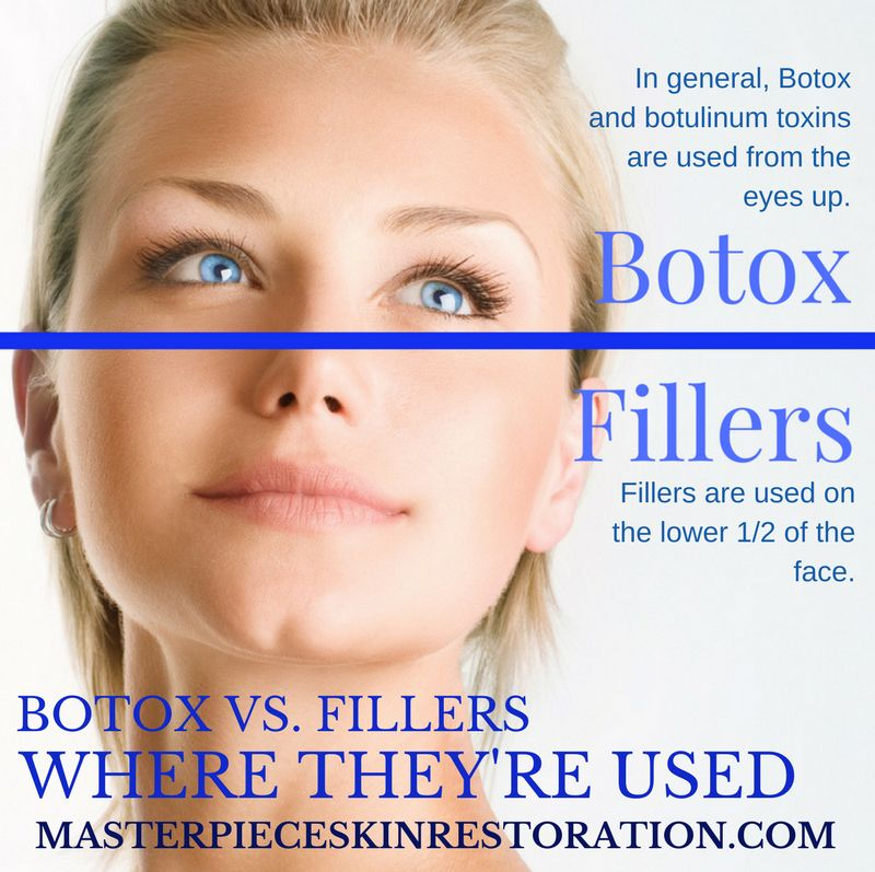 Botox vs  Fillers | Botox fillers, Nose fillers, What does