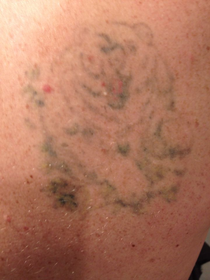 After just two treatments with picosure laser laser
