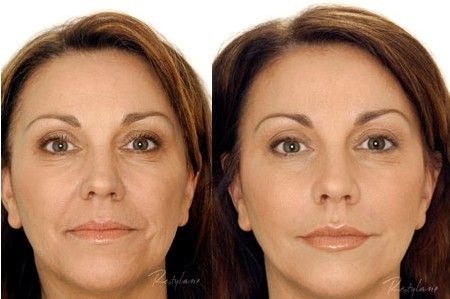 Dermal fillers luxury med spa in farmington hills mi is a great dermal fillers luxury med spa in farmington hills mi is a great place to pamper yourself call 248 855 0900 to schedule an appointment or visit our solutioingenieria Gallery
