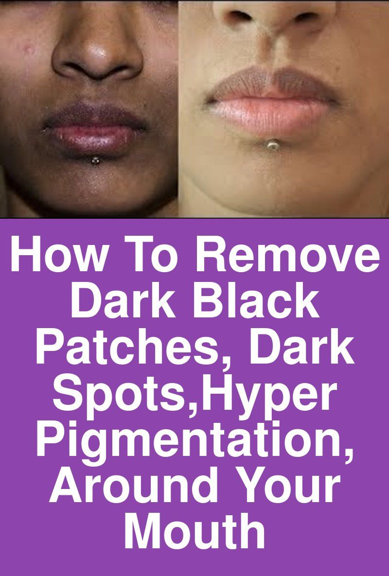 How To Remove Dark Black Patches Dark Spots Hyper Pigmentation Around Your Mouth Black Skin Dark Skin Around Mouth Skin Care Dark Spots Dark Patches On Face
