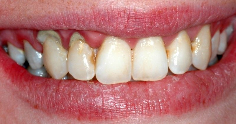 7 Home Remedies For Gum Disease Health Pinterest