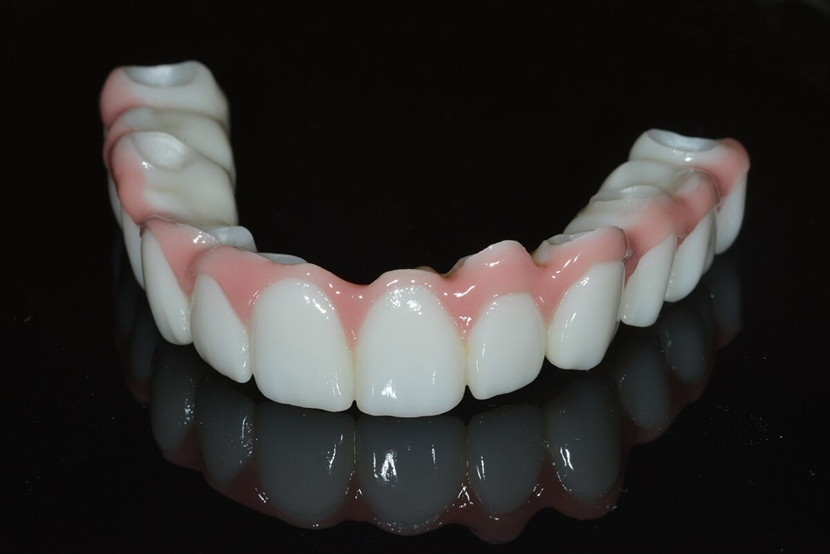 Zirconia Implant Dentistry Implant Dentistry Dental Implants Dental Cosmetic Dentistry
