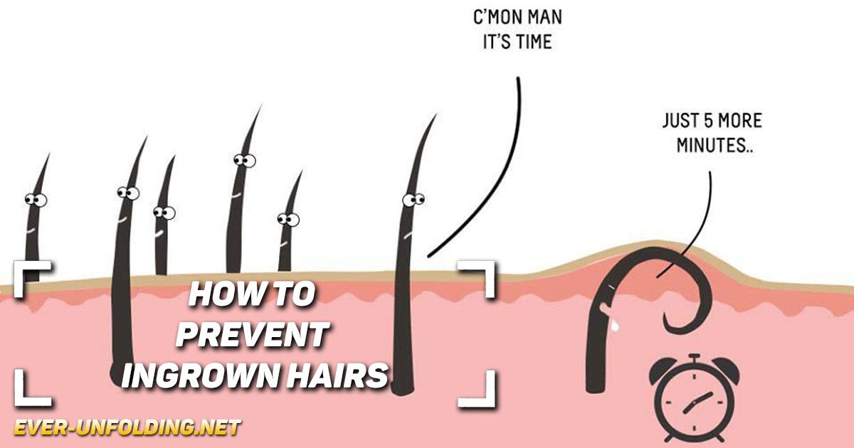How To Avoid Ingrown Hair Lajoshrich