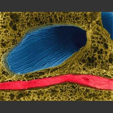 Lung: bronchiole (blue), alveoli (brown) and blood vessel (red).