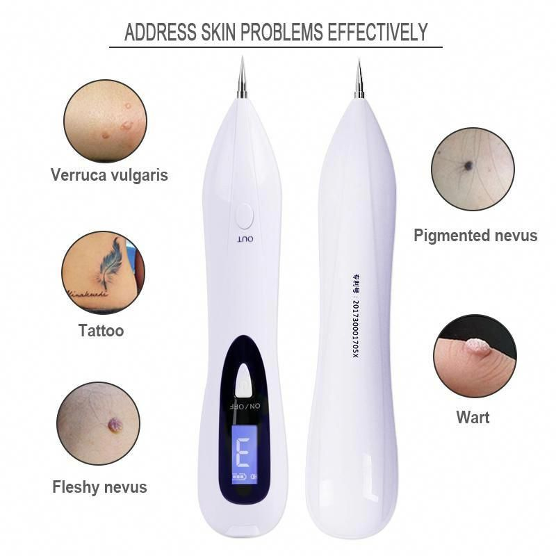 Remove Unsightly Moles Warts And Skin Tags Just Like A