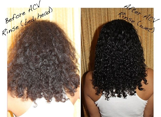 Rinse Your Hair With Apple Cider Vinegar To Reduce Frizz Stop Hair Loss Promote Growth And M Curly Hair Styles Naturally Treat Curly Hair Natural Hair Styles